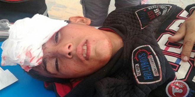جراحت ده ها نفر فلسطینی در حملات اشغالگر به تظاهرات بازگشت