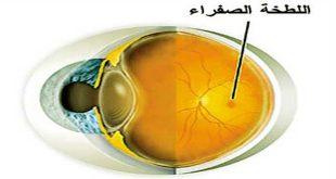 Image result for اللطخة الصفراء