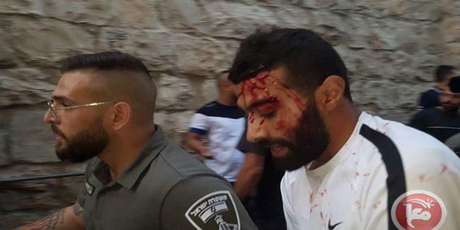 إصابة عدد من الفلسطينيين بجروح جراء اعتداء الاحتلال عليهم