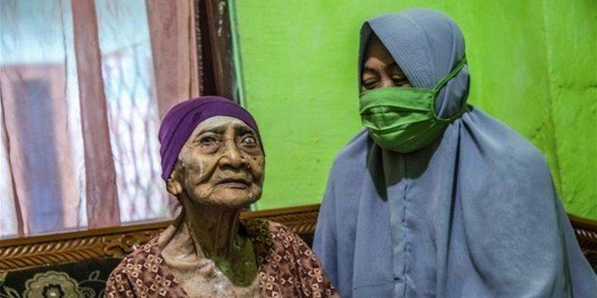 شفاء إندونيسية في سن المئة من فيروس كورونا المستجد