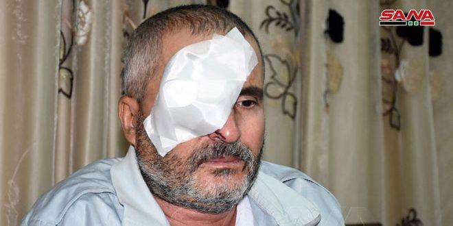 عامل يفقد إحدى عينيه خلال صيانة خطوط مياه الشرب بحماة